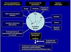 Male infertility. Causes, symptoms, treatment Male infertility Y Chromosome Microdeletion