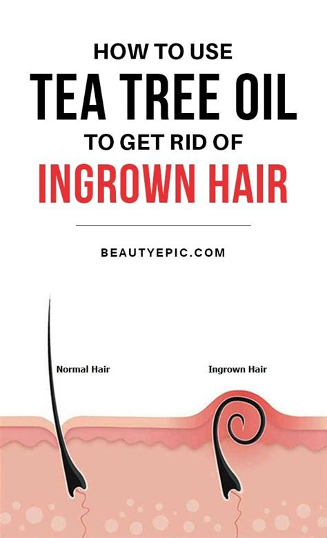 is tea tree oli for ingrowing hairs beauty diy coconut 17 best ideas about tea tree oil uses on pinterest tea