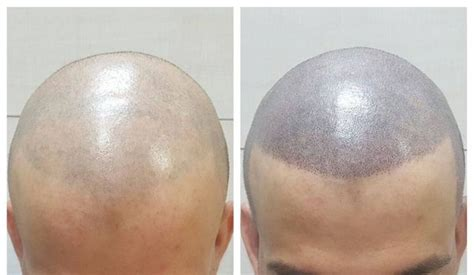 tattoo cost in kerala are there any good centres for scalp micro pigmentation in