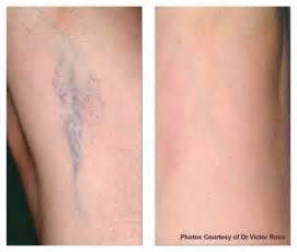 tattoo removal ogden utah 74 best timeless medical spa images on pinterest medical