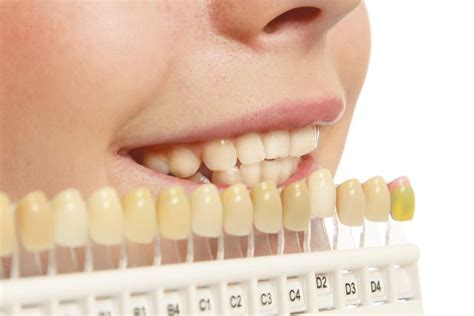 7 Reasons To Get Your Teeth Whitening Procedure Done By A Pro by How To Make Your Teeth Whiter
