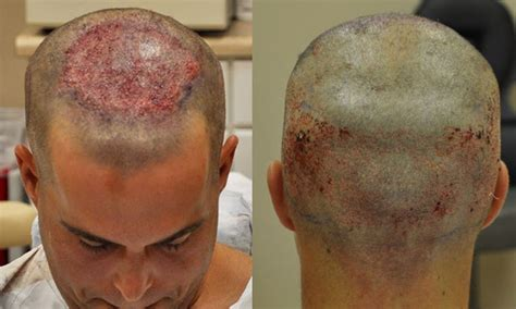 neograft in turkey post op fue hair transplant post op fue hair transplant