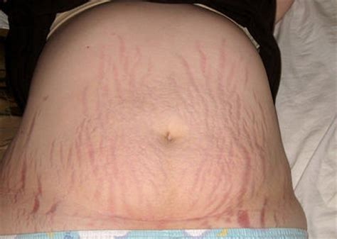 Symptoms Causes Treatment Of Disease C Section Scar