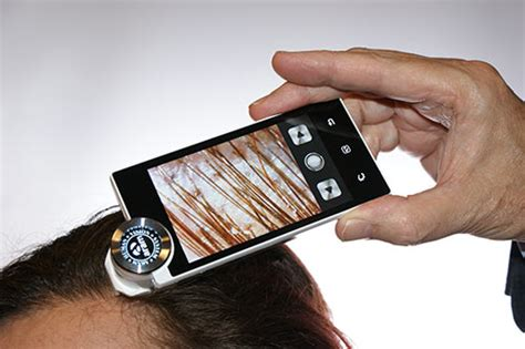 latest technology in hair regrowth most advanced hair restoration technology for hair regrowth