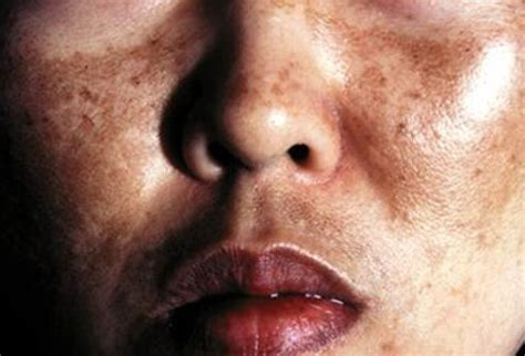 skin disease loss of pigment with hair loss melasma picture image on medicinenet com