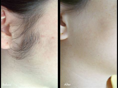 hair removal pictures laser hair removal phoenix az camelback health care