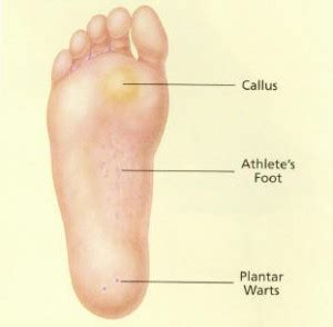 What Is A Planters Wart Look Like by Plantar Warts Rhinebeck Foot Care