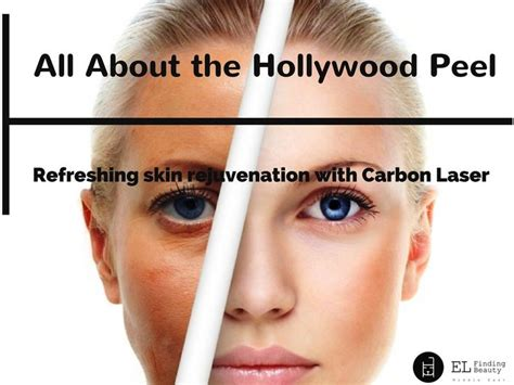 tattoo removal chemical peel peel skin rejuvenation with carbon laser