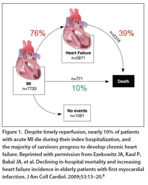 cardiac interventions today from door to balloon to door