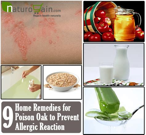 9 best home remedies for poison oak to prevent allergic