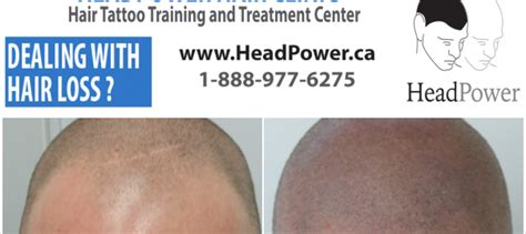 canada hair removal clinic canada hair removal clinic dermatch headpower hair clinic blog