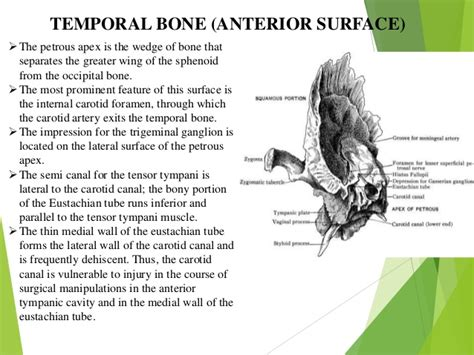 Temporal Bone Dissection Guide anatomy of temporal bone and it s surgical importance