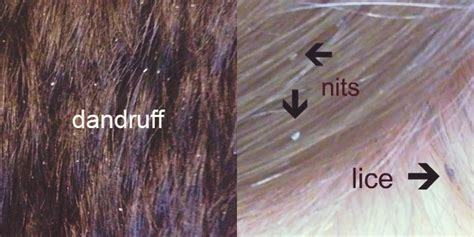 Can Using A Hair Dryer Cause Dandruff lice vs dandruff nits scalp what s the difference guide