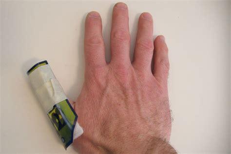 how to finger impromptu finger splint alle deutsch