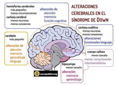 el cerebro del nio s 237 ndrome de down thinglink