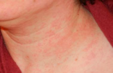 itchy rash on face and neck rash on neck itchy red lupus heat rash back of neck