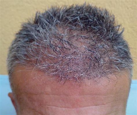 haartransplantation wann fallen die haare aus g 233 rard 2007 haare hairpalace