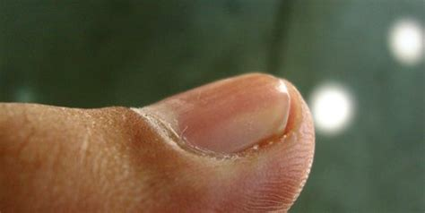 infected nail bed nail bed infection icd 9