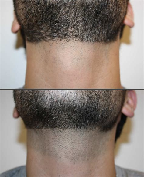 permanent head hair without surgery laser hair removal before after neck shino bay