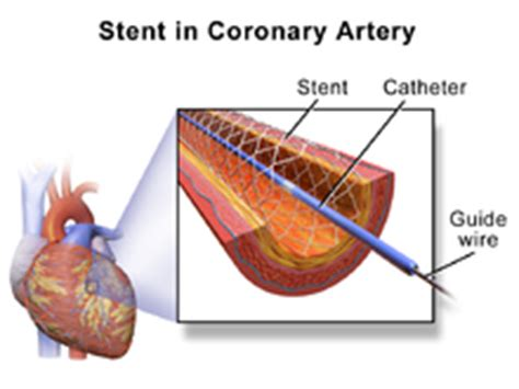 coronary angioplasty with or without stent implantation percutaneous coronary intervention wikipedia
