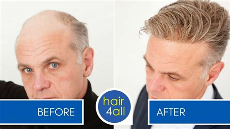 mens hair replacement systems before and after results of our non surgical hair