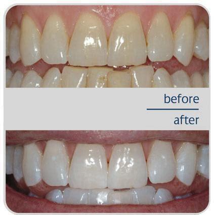 teeth whitening  san francisco union square san