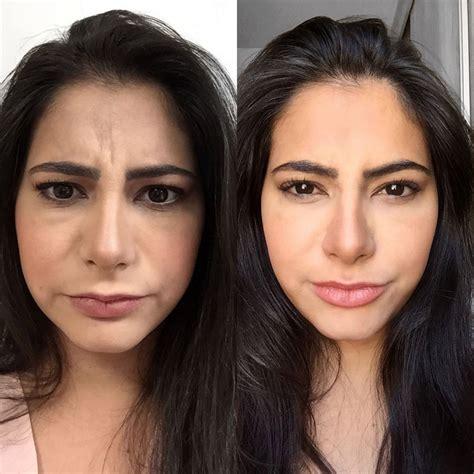Antes E Depois by Antes E Depois Do Meu Botox E Preenchimento