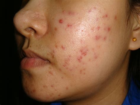 acne laser treatment the laser treatment clinic london acne treatment from a dermatologist how to treat acne