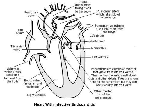 heart cross section diagram infective endocarditis pathology project