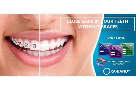 ora band 174 teeth gap elastics your teeth gap