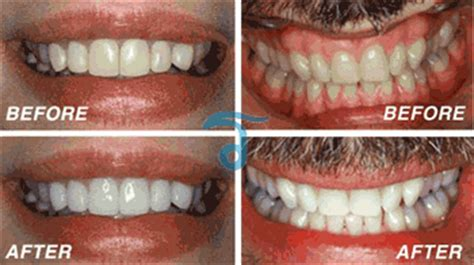 affordable laser teeth whitening  thailand  hour