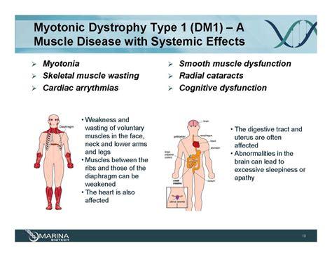 myotonic dystrophy pattern of weakness 187 acceleratedclinical development plan