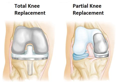 total knee replacement diagram what is knee replacement surgery and how to prepare