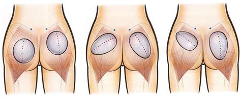 implantes de gluteos fotos aumento de gl 250 teos implante grasa derrier