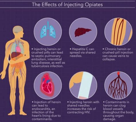 Authorized Opiate Detox Medications by How Do Opiates Stay In Your System Urine Blood