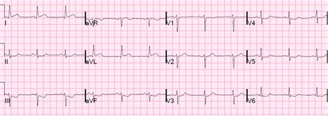 heart ecg pattern dr smith s ecg blog