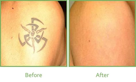 tattoo removal process guaranteed work laser tattoo removal vale laser clinic