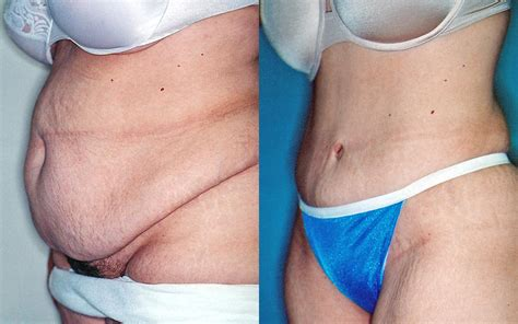 Full Tummy Tuck After C Section 39 Year Old Patient Left