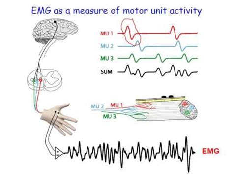 what is motor unit emg and motor units