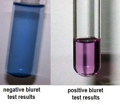 color results biuret test principle requirements procedure and result