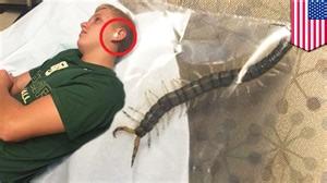 un ado se r 233 veille avec une douleur dans l oreille le