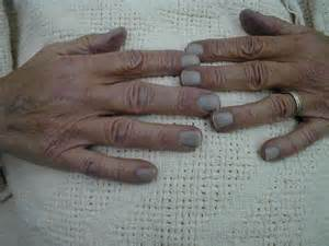bluish coloration of the skin cyanosis