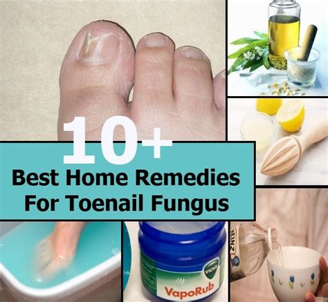 10 best home remedies for toenail fungus diy home things
