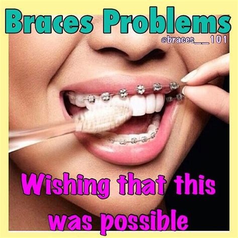 Orthodontist Meme - best 25 braces meme ideas on pinterest