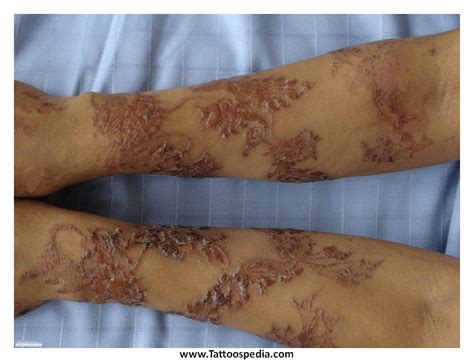 tattoo infection treatment 14 henna rash torn ripped skin images