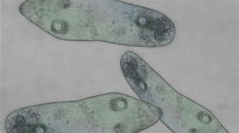 bauchschmerzen schleimiger stuhl exotische krankheiten ansteckung durch viren co