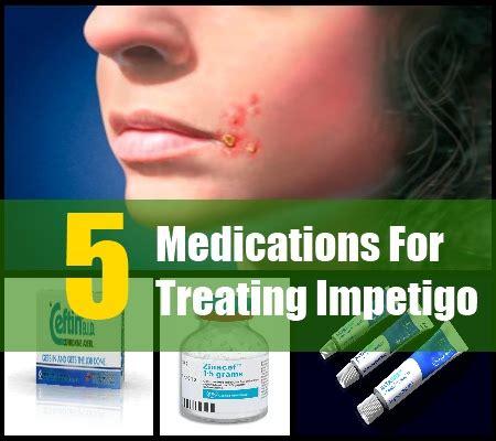 best treatment for impetigo 5 effective drugs and medications for treating impetigo