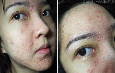 Secret Obat Acne and mind 7 kasus kulit rusak karena kosmetik wajah