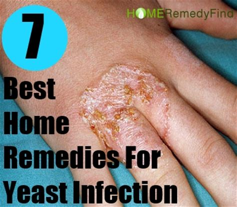 best yeast infection tips