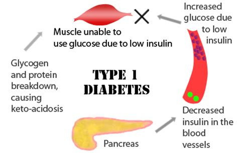 textbook type 1 diabetes complications open access books